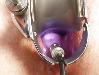 aged ruzena gyno fetish clinic doctor visit